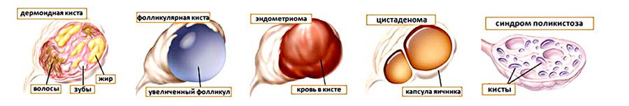 киста яичника при кормлении его организовать